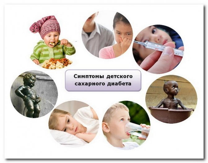 Симптомы сахарного диабета у детей, причины, типы, диагностика, лечение
