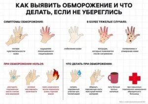 Переохлаждение и обморожение ног и рук: причины, последствия, лечение