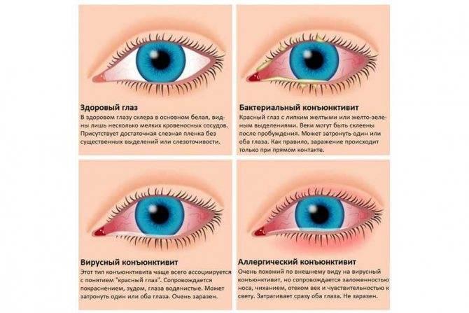 Болят глаза у ребенка: виды боли, симптомы, причины, диагностика и лечение