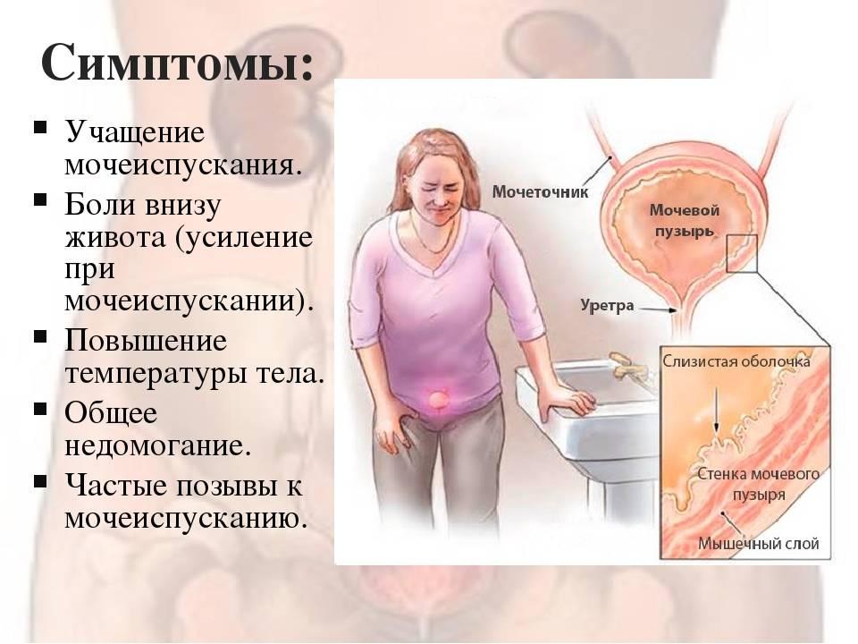 Боль при мочеиспускании у женщин: причины, диагностика, лечение