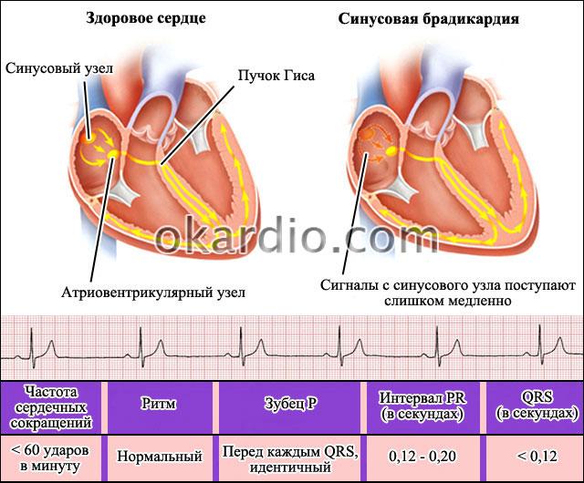 Брадикардия у детей и подростков 5–15 лет — заболевания сердца