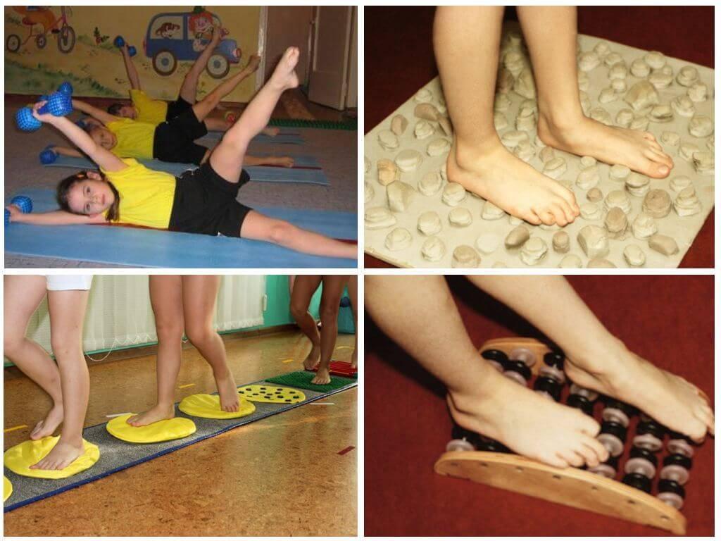 Ортезы при вальгусной деформации коленных суставов у детей