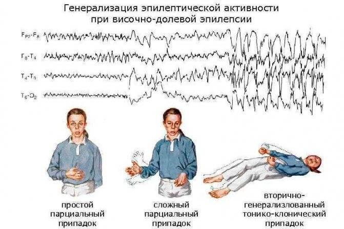 Роландическая эпилепсия: симптомы и лечение
