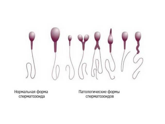 Причины семяизвержения с кровью, симптомы и лечение патологии
