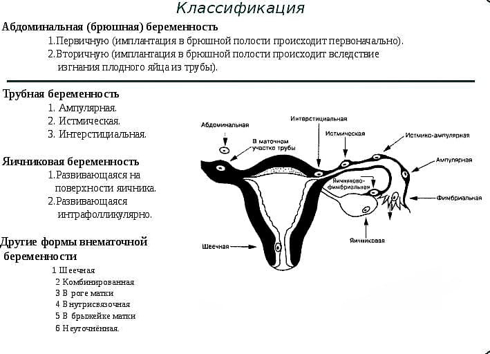 Спайки в матке и беременность