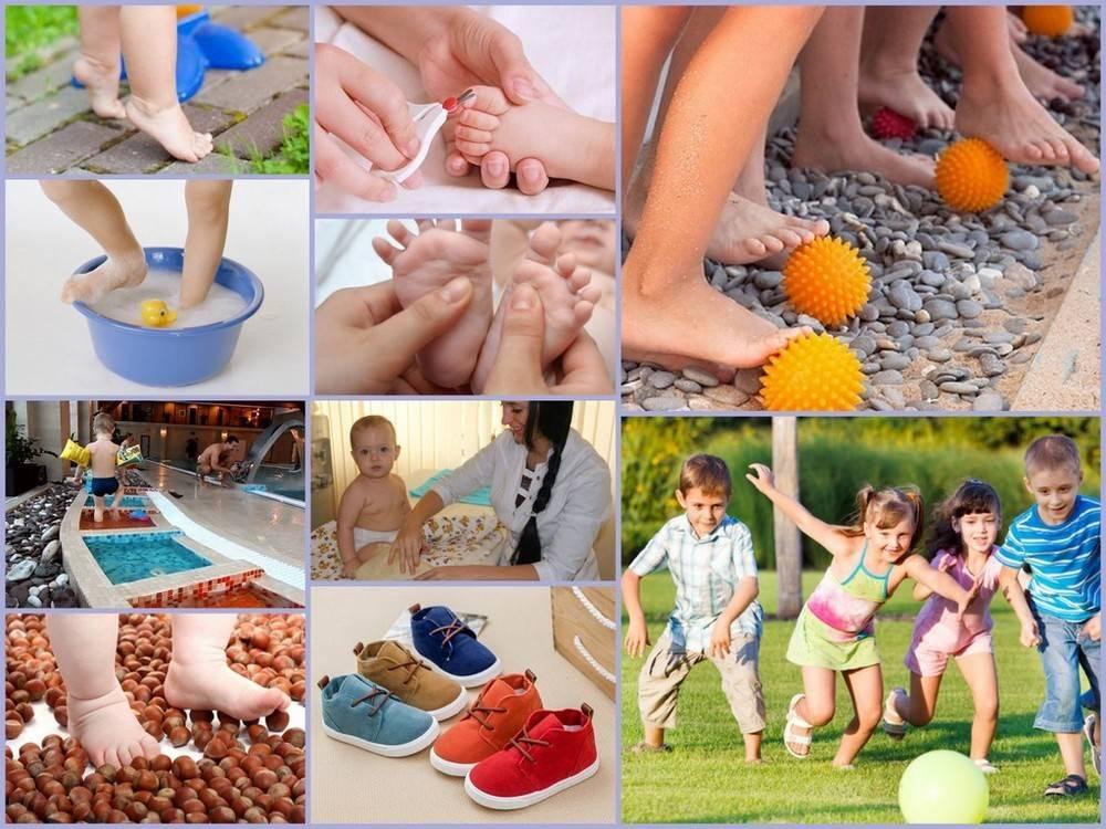 Плоскостопие у детей - профилактика и причины возникновения