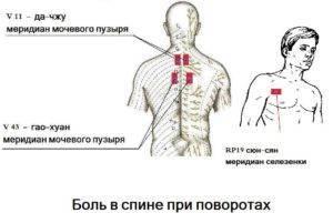 Что делать если заклинило шею и больно поворачивать?