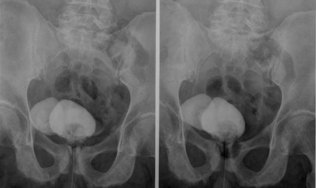 Цистография у детей последствия — почки