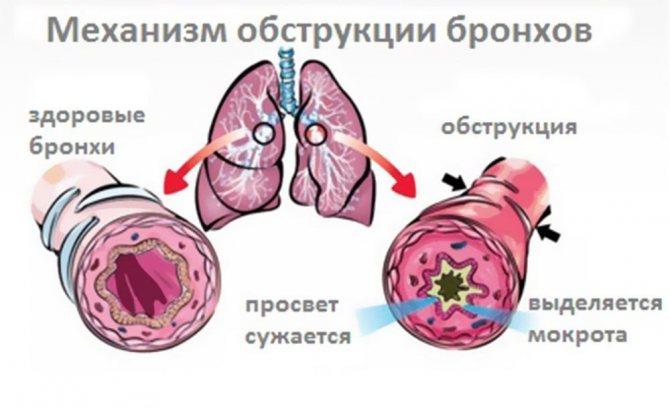 Бронхит у детей: лечение, симптомы, профилактика. обструктивный бронхит у детей — лечение, осложнение