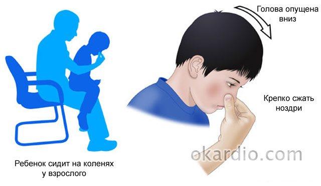 Комаровский о причинах и лечении частых носовых кровотечений у детей
