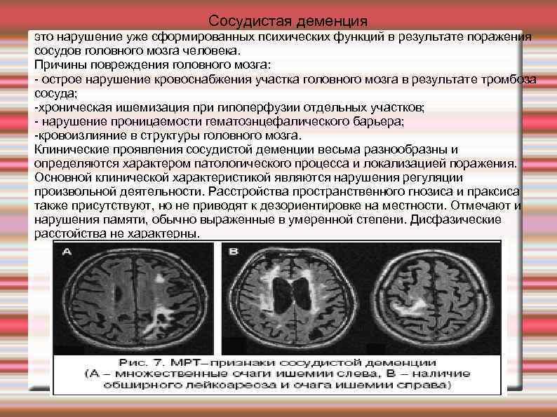 Особенности резидуальной энцефалопатии