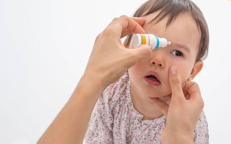 Как лечить конъюнктивит у ребёнка в домашних условиях