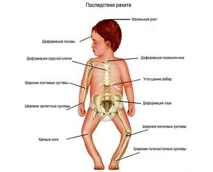 Рахит у грудничков: симптомы с фото, методы лечения, меры профилактики