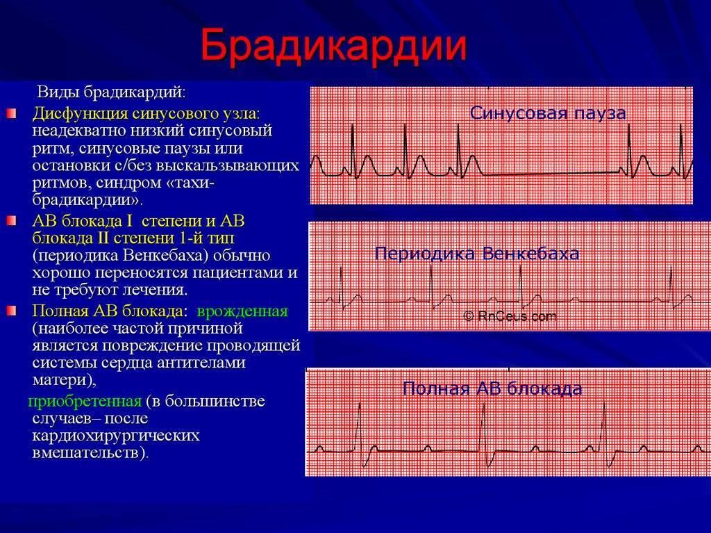 Брадикардия - что это такое? как лечить брадикардию сердца в домашних условиях