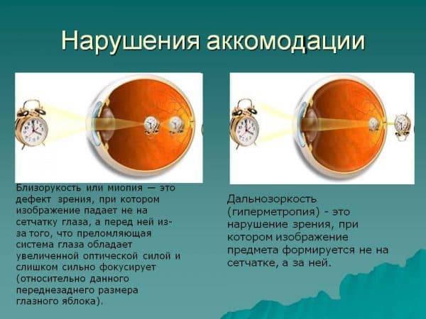Что такое спазм аккомодации - симптомы и лечение oculistic.ru что такое спазм аккомодации - симптомы и лечение