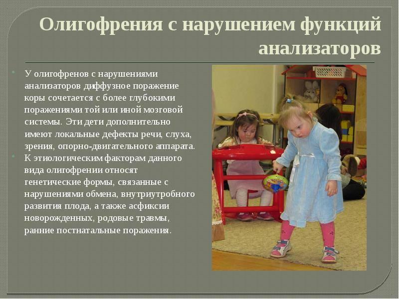 Классификация олигофрении у детей: фото, формы, степени, симптомы и признаки