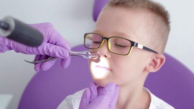 Аденоиды 2 степени у ребенка( гипертрофия): схема лечения, препараты, удаление