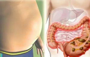 Что делать, если у вас вздувшийся живот, причины и лечение