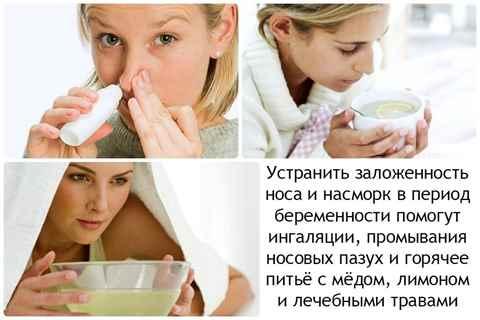 Заложенность носа при беременности