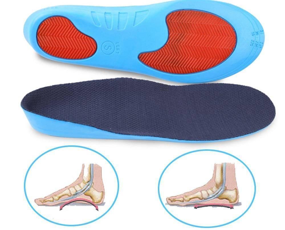 Ортопедические стельки при плоскостопии продольном и поперечном