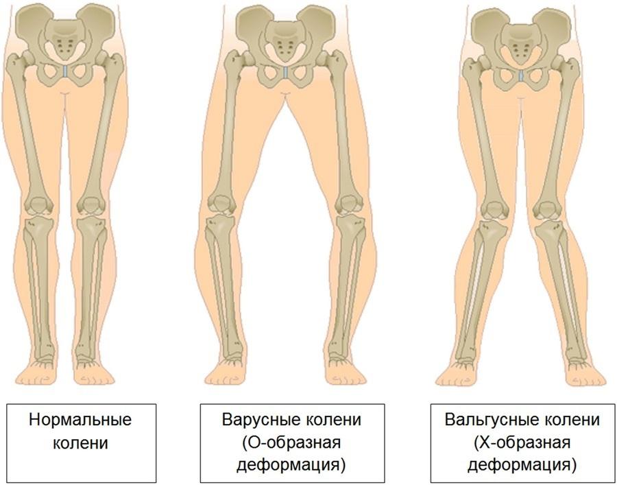 Вальгусная деформация коленных суставов у детей фото | лечение суставов