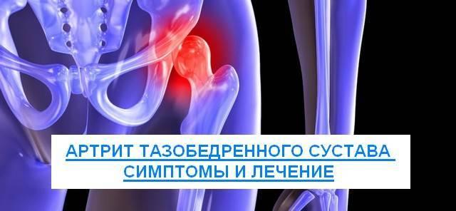 Артрит тазобедренного сустава симптомы и лечение у детей