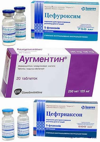Антибиотики при отите у детей: можно ли вылечить ушными каплями лор заболевания