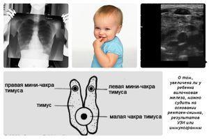 Тимус: узи-исследование и заболевания вилочковой железы