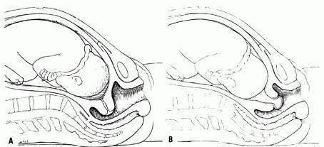Тайный язык. о чем говорят врачи во время родов? оценка родового процесса и состояния плода