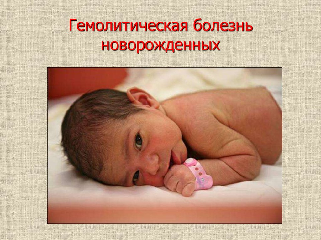 2 возможные причины гемолитической болезни новорождённых