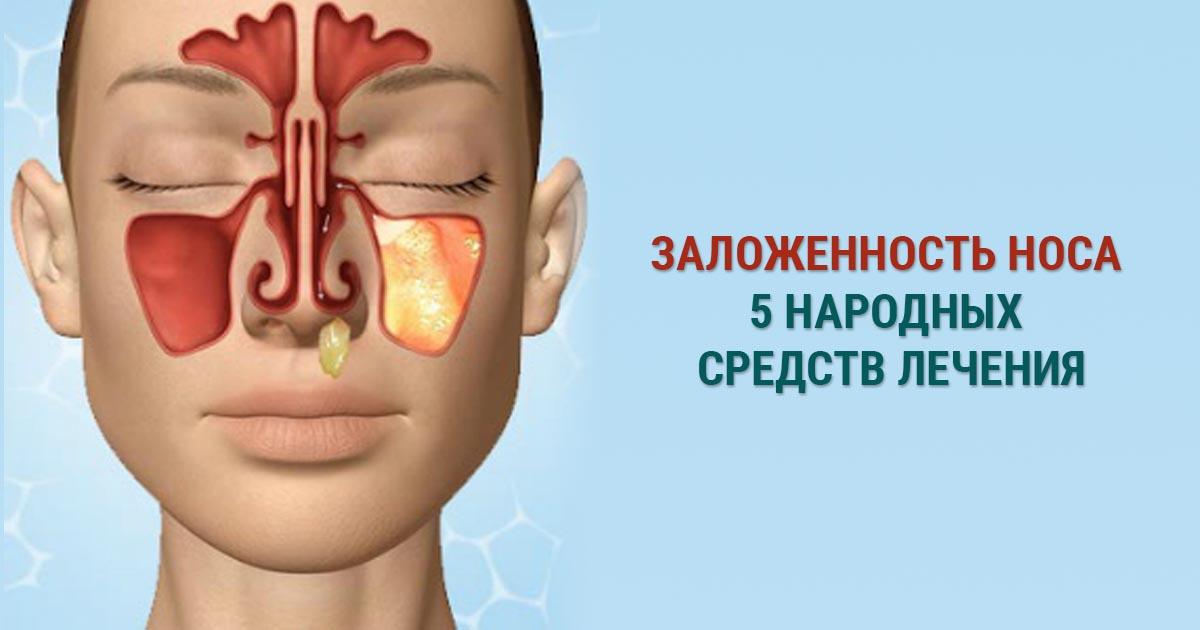 При заложенности носа у детей народное средство