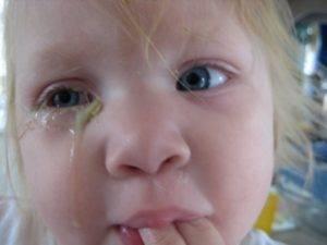 Почему у ребенка при простуде зеленые сопли, кашель и гноятся глаза: причины и лечение насморка и конъюнктивита