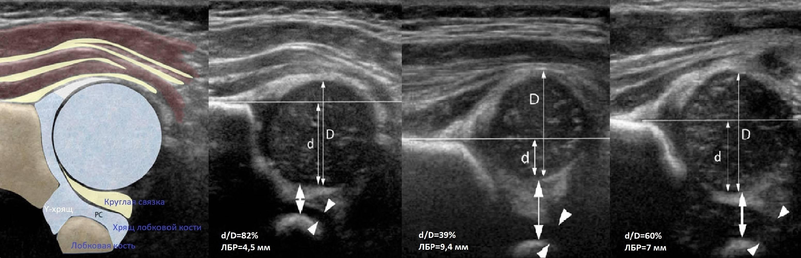 Узи тазобедренных суставов новорожденных грудничков: норма углов и расшифровка