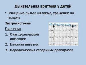 Синусовая аритмия у ребенка: характерные симптомы и способы лечения - kardiobit.ru