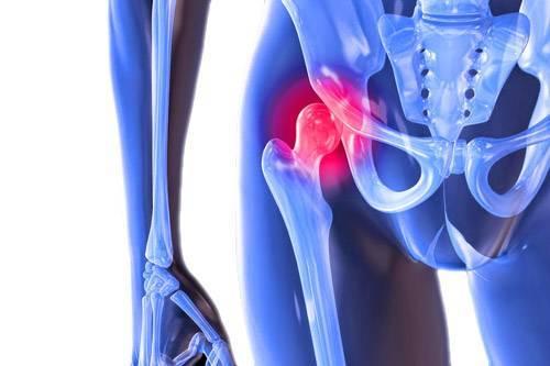 Артрит тазобедренного сустава: симптомы и лечение народными средствами у детей, препараты при воспалении сустава, причины