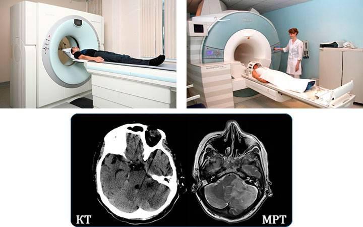 Исследования сосудов и структур головного мозга: ключевые методы диагностики