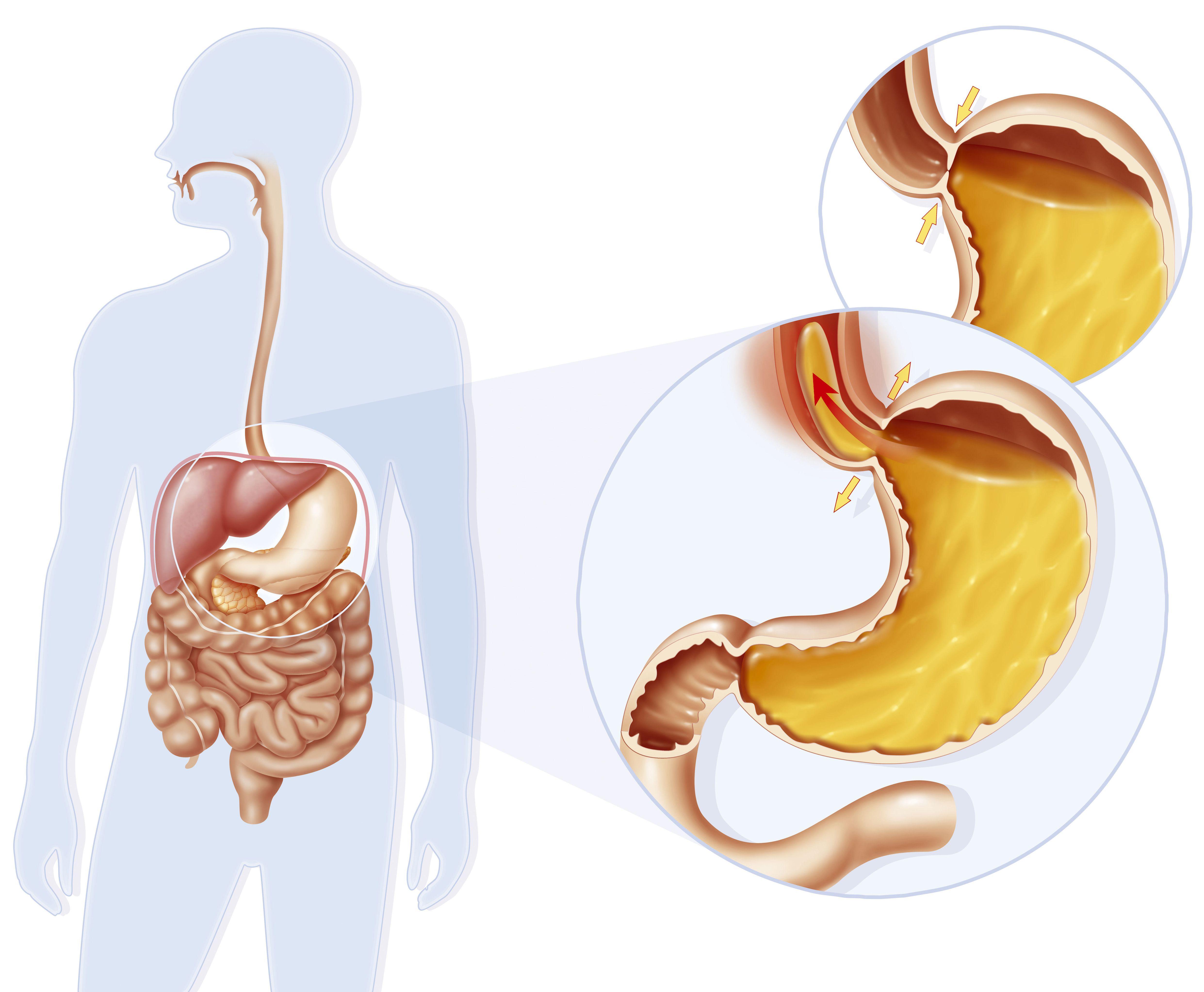 Как запустить желудок в домашних условиях?