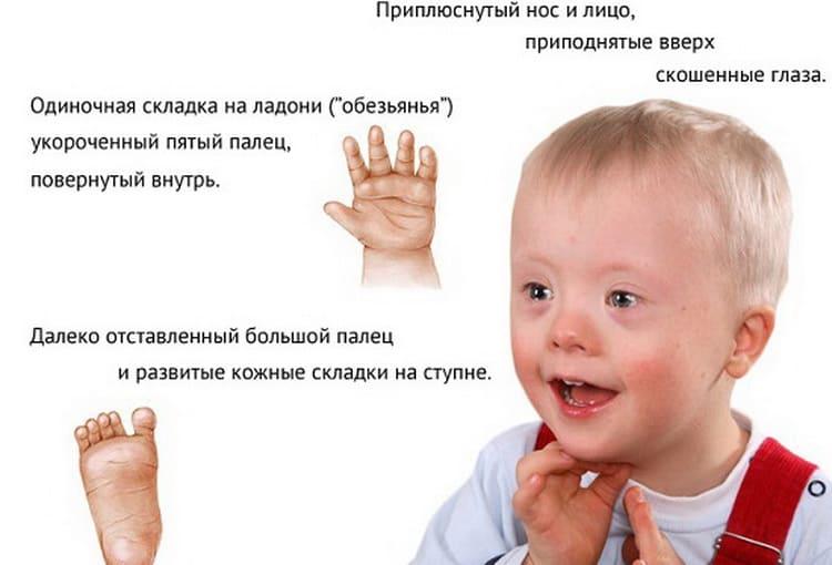 Мозаичная форма синдрома дауна: как определить. синдром дауна: причины и последствия заболевания