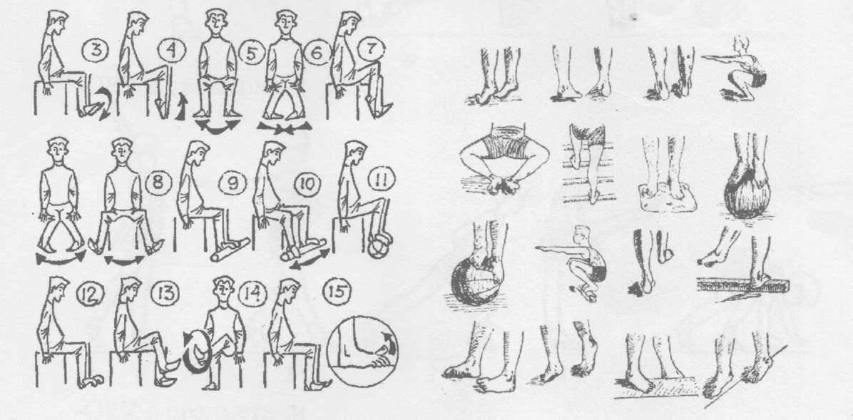 Вальгусная деформация коленных суставов у детей: лечение вальгуса, причины
