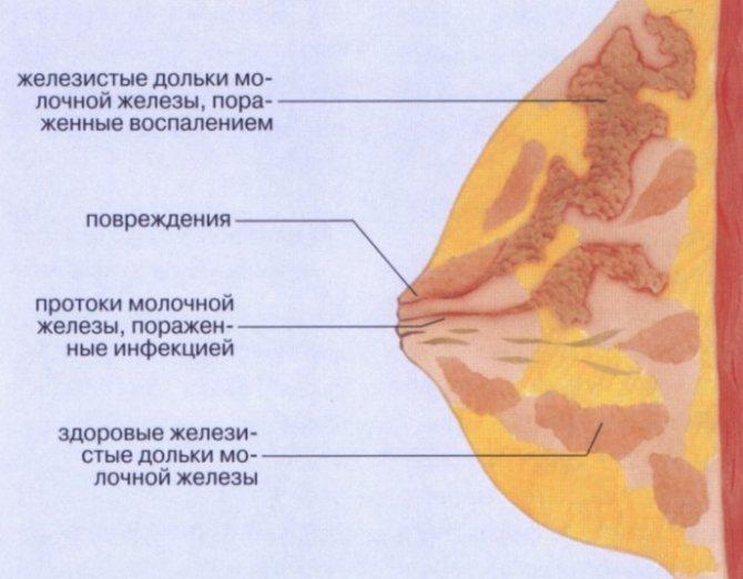 Уплотнение в молочной железе у кормящей, лечение
