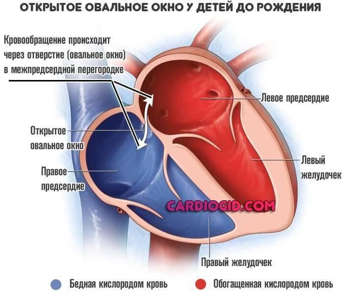 Опасно ли открытое овальное окно в сердце у детей?
