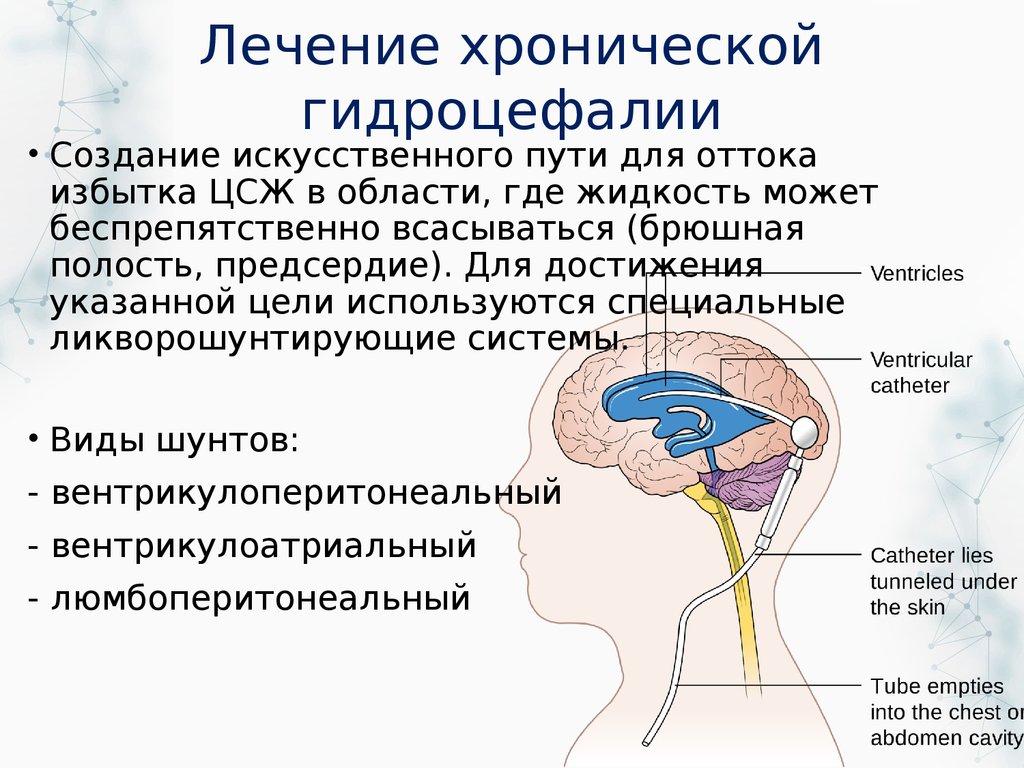Гидроцефалия: не упустить время! гидроцефалия головного мозга у новорожденных