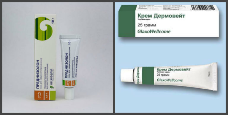 Эффективные мази и кремы при лечении дерматита. характеристика и область назначения