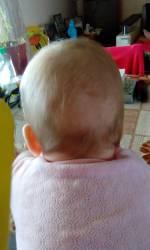 Почему у грудничка выпадают волосы на голове и что с этим делать?