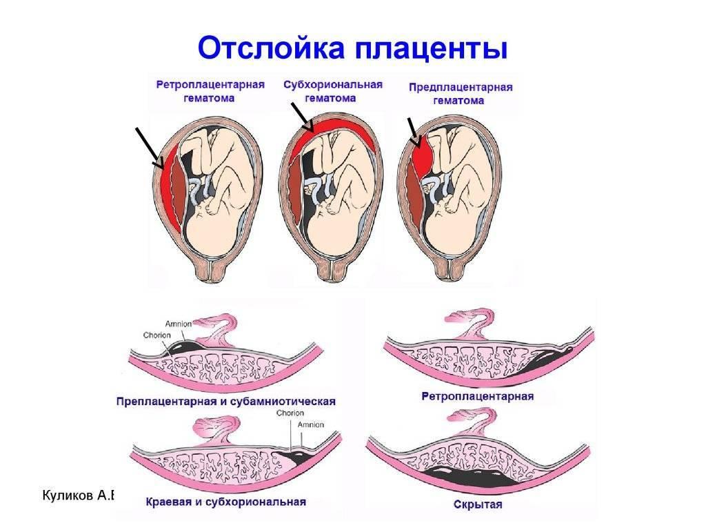 Угроза прерывания и отслойка плодного яйца на ранних сроках беременности