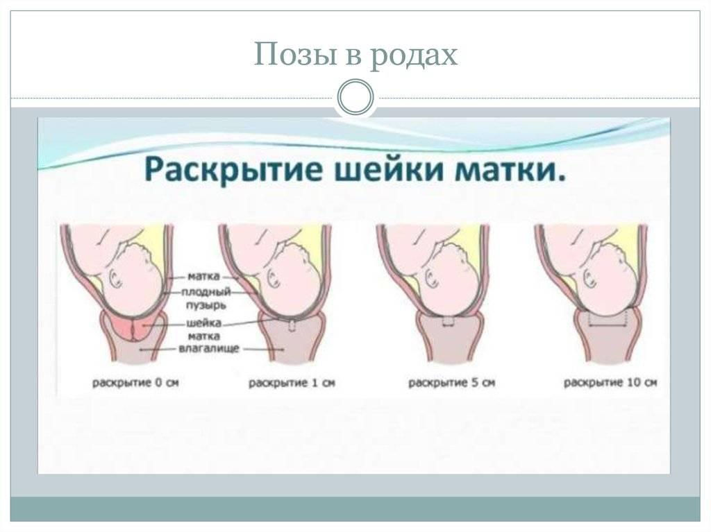 Стимуляция родов, как происходит стимуляция родов в роддоме