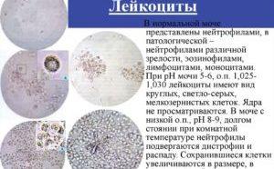 Нормы и причины отклонений лейкоцитов в моче у ребенка