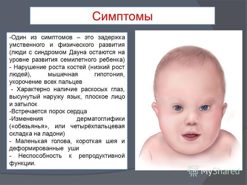 Какие признаки синдрома дауна у новорожденных: чем обусловлена патология?