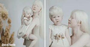 Дети-альбиносы. в чём причина и как проявляется заболевание?