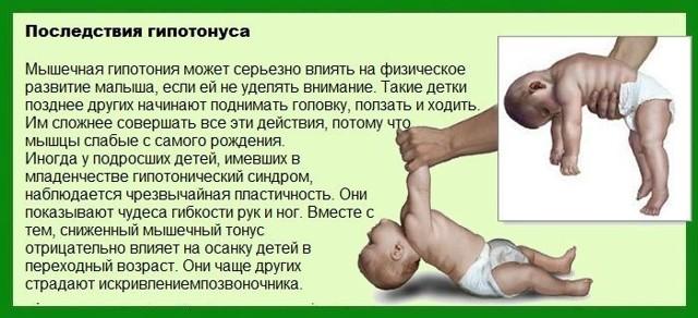 Гипертонус у ребенка - симптомы, признаки, лечение гипертонуса у новорожденных детей